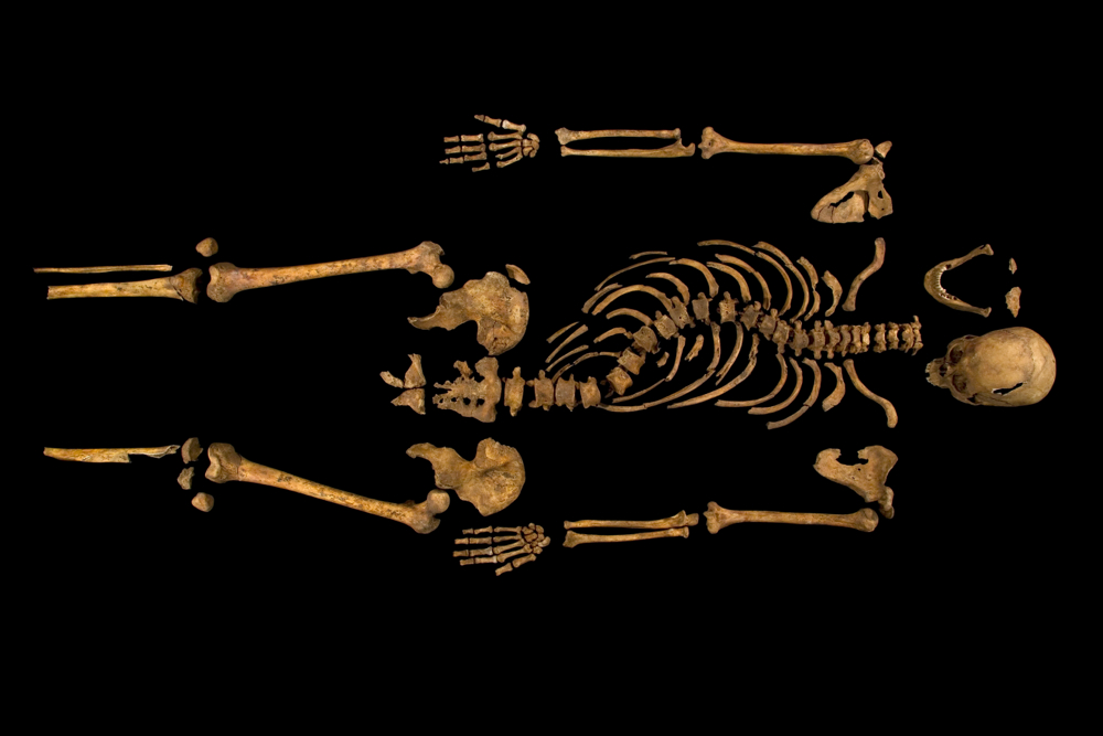 READ: Richard III – case closed, 529 years later. Skeleton of Richard III. University of Leicester photo