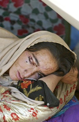 Pakistan, 22 October 2005 -- An injured woman rests in Mansehra District Hospital, later evacuated, after the earthquake. UN Photo