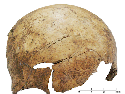 Skull with axe injury. Christian Meyer, PNAS