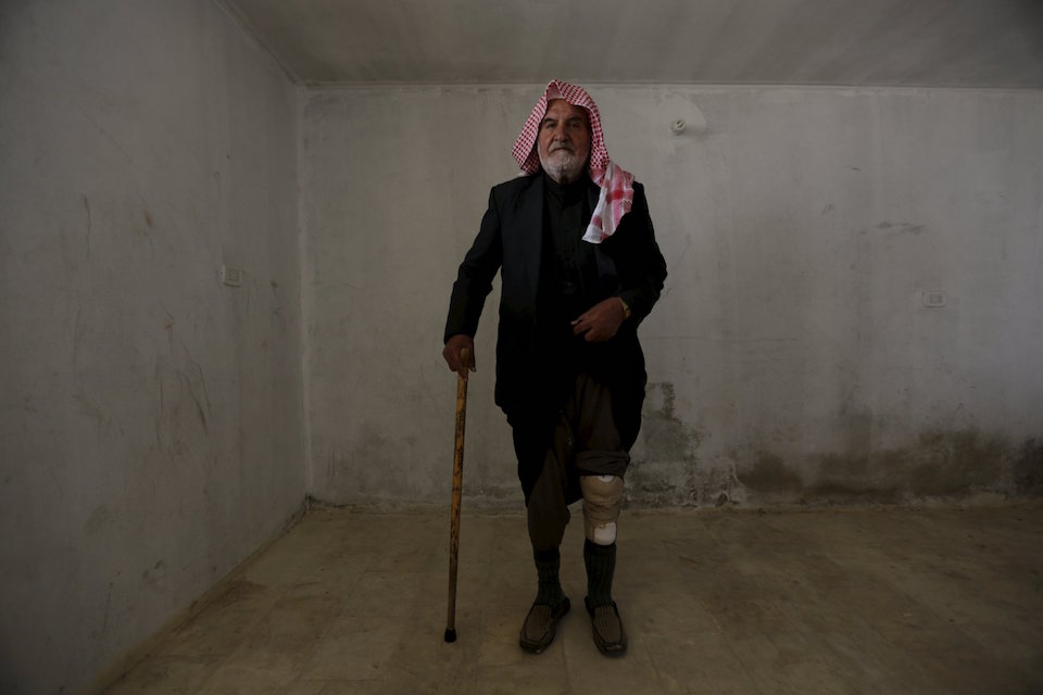 A man with an amputated leg poses for a photograph wearing his artificial limb in the rebel-controlled area of Maaret al-Numan town in Idlib province, Syria March 20, 2016. Two university students forced to interrupt their studies have learnt to make and fit hundreds of new limbs in the past four years in opposition-held areas of Syria. A mobile clinic operating from a truck has gone some way to improve access to treatment. While most patients are between 15 and 45, the clinic also helps children and the elderly with replacement limbs. REUTERS/Khalil Ashawi